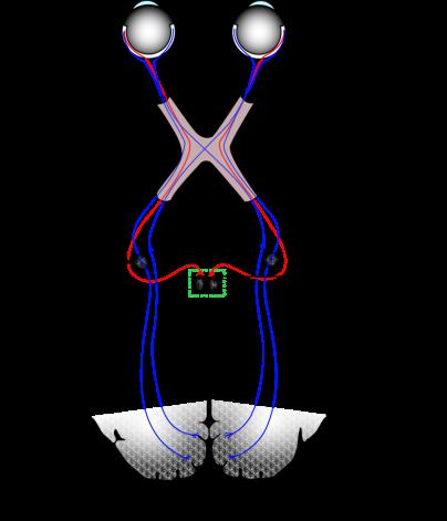 visualsystem