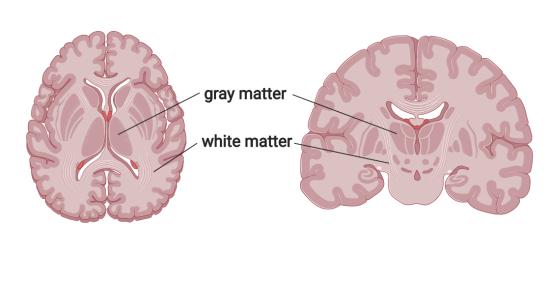 yoga_graymatter_whitematter